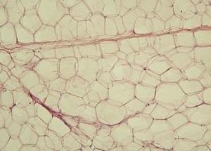 Un interruptor biológico transforma la grasa blanca en grasa parda.  Un-interruptor-biologico-transforma-la-grasa-blanca-en-grasa-parda_image365_